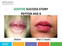 SOOTHE your skin this winter! The SOOTHE regimen is perfect for ALL ages. Message me for details.