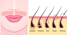 Unwanted facial hair is a common problem among women and everyone is looking for ways to get rid of facial hair naturally. Its growth might be due to hormonal imbalances, certain medications, or a condition called hirsutism. Hair Removal Diy, Laser Hair Removal, Upper Lip Hair Removal, Best Hair Removal Products, Beauty Care, Beauty Hacks, Beauty Tips, Hair Beauty, Female Facial Hair