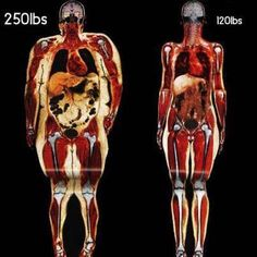 Le gras nous tue à petit feu puisque notre corps l'emmagasine pour nous protéger contre les toxines. La Purification Nutritionnelle de Isagenix est une solution santé pour débarrasser notre corps des toxines et par le fait même du gras accumulés. Nous n'avons pas besoin d'avoir un surplus de poids pour emmagasiner des toxines et du gras. Même les personnes minces n'y échappent pas. C'est pourquoi la Purification Nutritionnelle d'Isagenix est une solution pour tous.