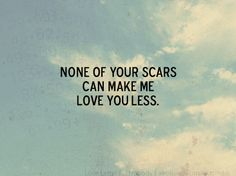 In fact, sometimes they make me love you more...it shows what you've overcome.