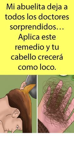 Beauty Skin, Health And Beauty, Hair Beauty, Split Nails, Cabello Hair, Hair Repair, Hair Loss, Hair Growth, Skin Care Tips