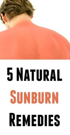 5 Natural Sunburn Remedies - Natural Holistic Life