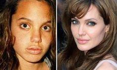 O antes e o depois dos famosos - Angelina Jouli