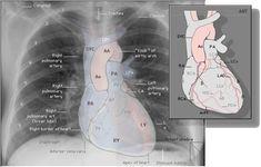 Radiografía de tórax normal. Se destacan las estructuras del mediastino.
