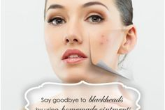 Say goodbye to blackheads by using homemade ointments