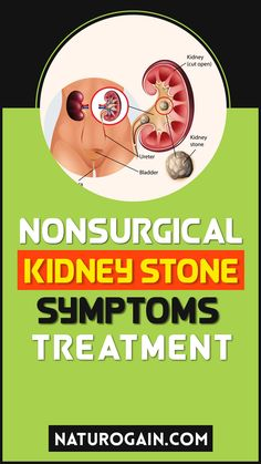 Kid Clear capsules are the best nonsurgical kidney stone symptoms treatment. These nephrolithiasis prevention tips pass renal calculi fast at home. #kidneystones #kidneystone #kidneyhealth Kidney Stones Symptoms, Improve Kidney Function, Kidney Health, Healthy Tips, Natural Remedies, Natural Home Remedies, Natural Medicine