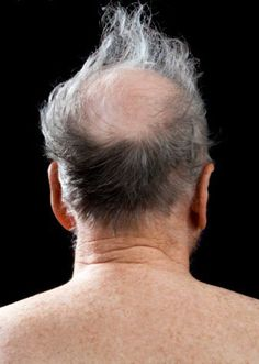 Remedies For Balding Saw Palmetto for Hair Loss - Can This Herb Halt Hair Loss? - Find out whether saw palmetto can help stop the most common type of hair loss, hereditary baldness or androgenic alopecia. Does it really work? New Hair Growth, Hair Growth Tips, Hair Growth Tablets, Hair Loss After Pregnancy, Natural Hair Loss Treatment, Hair Loss Women, Prevent Hair Loss, Hair Regrowth, Hair Health