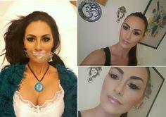 Egy kis optikai tuning :) A szájfeltöltésről sok nőnek még mindig a kacsaszáj jut az eszébe. Alaptalanul. Mit szólsz hozzá? Szép lett? Minion, Crochet Necklace, Chokers, Jewelry, Fashion, Jute, Moda, Jewlery, Jewerly