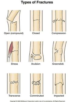Fractures- open closed. FOOSH-colle's, greenstick, scaphoid, snuffbox…