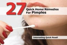 27 Quick Home Remedies For Pimples