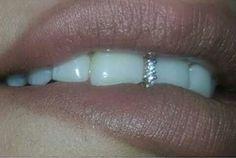 Grillz for Gaps✨ - Us Wood Crafting Diamond Grillz, Diamond Teeth, Tooth Diamond, Dental Jewelry, Tooth Jewelry, Grills Teeth, Mouth Grills, Tooth Gem, Pedicures