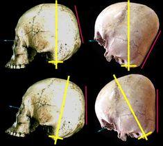 Starchild Skull -angle