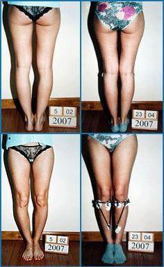 Bow legs correction - Patient 2