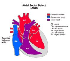 An atrial septal defect allows oxygen-rich (red) blood to pass from the left atrium, through the opening in the septum, and then mix with oxygen-poor (blue) blood in the right atrium.    An ostium secundum is an opening in the middle of the atrial septum which is the most common type of ASD. Atrial septal defects occur in 5 to 10 percent of all children born with congenital heart disease. For unknown reasons, girls have atrial septal defects twice as often as boys.