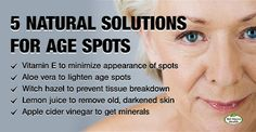You may start to notice unsightly on your that may make you cringe. These dark spots are known as or liver spots, and usually occur in areas exposed to the sun, such as the Organic Skin Care, Natural Skin Care, Natural Cures, Skin Care Regimen, Skin Care Tips, Age Spot Remedies, Age Spots On Face, Liver Spots On Hands, Skin Care Routine For 20s
