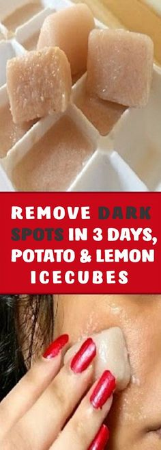 Food + Fashion + Fitness I'm SHOCKED It Removed My Dark Spots In 3 Days, Magic Remedy