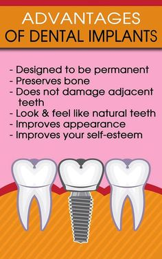 Are You Looking For Dental Implant In Bangalore? We do the best dental Implants in Bengaluru, at an affordable cost. Get a free dental implant consultation at Diva Dental Clinic. Implants Dentaires, Implant Dentistry, Cosmetic Dentistry, Dental Implants, Sedation Dentistry, Teeth Health, Oral Health, Dental Health, Dental Care