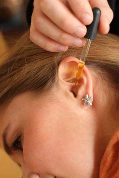 Homemade Ear Drops – a Simple and Effective Earache Remedy