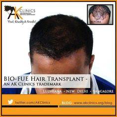 What is Bio-FUE Hair Transplant and its advantages : AKClinics Hair Transplant In India, Best Hair Transplant, Revolutionaries, Hair Loss, Hair Growth, Clinic, Cool Hairstyles, Hair Growing, Fancy Hairstyles