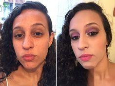 Preparação de pele com Acne  Minha amiga Karen me cedeu a beleza dela para que eu pudesse mostrar para vocês o antes e depois dá uma pele com acne maquiada corretamente. Corre lá no Blog que eu te conto tudo  www.falamiga.com.br