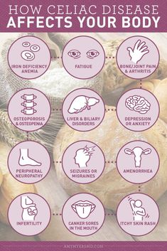 Celiac Test, Celiac Disease Symptoms, Gluten Intolerance Symptoms, Food Intolerance Test, Gluten Symptoms, Gluten Free Diet, Foods With Gluten, Paleo Diet, Keto