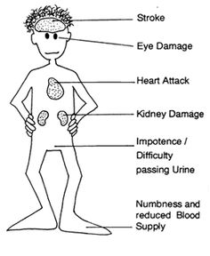 pictures diabetes consequences | Another reason to keep your weight in check: Diabetes