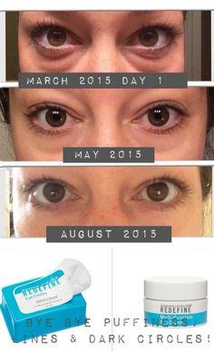 Dynamic Duo- REDEFINE Multifunction Eye cream and REDEFINE Eye Cloths Kwaybright.myrandf.com