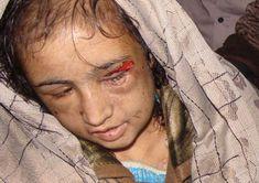 child-bride-girl-tortured.jpg (920×650)