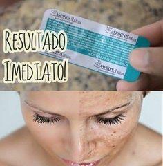Se você sofre com manchas no rosto trago-lhe a solução para seu problema de como clarear manchas no rosto com aspirina, pois ela contém ácido em sua