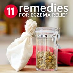 Here are 11 natural eczema treatments that will help heal and give you relief.