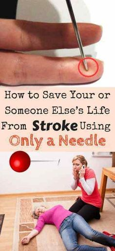 Acupressure Diy How to save your or someone else's life from stroke using only a needle Health And Beauty, Health And Wellness, Health Tips, Health Care, Health Fitness, Kids Health, Natural Cures, Natural Health, Health Matters