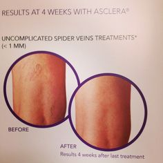 Have Spider Veins? We can rid of them quickly with Sclerotherapy! It's a minimally invasive procedure done by Forever Young Medical Day Spa to treat uncomplicated spider veins. The treatment involves the injection of a solution into the affected area . Call 714-897-5555 to schedule an apt!