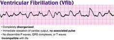 VFib  Tx Defibrillation