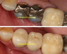 Before and after photo of all ceramic crowns on teeth with dark silver colored fillings. A great result on this patient from Woodbridge, CT. Dental Photos, Tooth Crown, Porcelain Crowns, Dental Aesthetics, Family Dentistry, Dental Services, Cosmetic Dentistry, Wood Bridge, Teeth Whitening