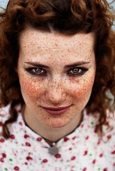 Tracy Olanrewaju When i was little my freckles were exactly like this when I had been out in the sun a lot. They faded as I became OLDER :)