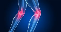 5 At Home Exercises To Relieve Knee Pain In 6 Days