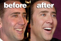 What would you rate the 'Before & After' photos, 10 being 'Perfect' and 1 being 'They should have never done it' for: Nicolas Cage.   Source: http://chirkup.me/a/10-celebs-and-their-teeth-before-and-after-fixing.html   #CosmeticDentistry