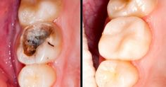 Heal Tooth Decay and Reverse Cavities With These 5 Steps!  http://www.healthyfitlifetime.com/alternative-health/heal-tooth-decay-reverse-cavities-5-steps/