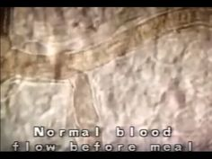 Blood flow after fatty meal 1 - YouTube