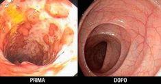 La pulizia periodica di colon e intestino è così importante da poter salvarci la vita. Nel colon si possono accumulare feci, tossine e residui tossici.