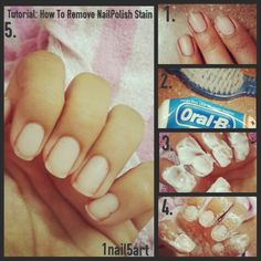 Tutorial: HOW TO REMOVE NAILPOLISH STAIN!¡ What you'll need is a toothpaste and a nail brush or u can use toothbrush its more easier to use. STEP 1 : Apply toothpaste on your nails where you have maximun stain. STEP 2 : Keep toothpaste for  4 -5  minutes. STEP 3 : Start scrubing your nails for around 2-3 minutes until the stains start removing.  STEP 4 : Wash your hands and nails properly. And taahhhhh-daaahhh ♡ •ALL GONE• P.S. You can use this method on any dark nail paints! ♡ #1nail5art