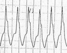 Taller left rabbit ear, Current reaches one ventricle first Ekg Interpretation, Emergency Medicine, Critical Care, Rabbit Ears, Nursing, Hearts, Life, Heart, Breast Feeding