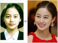 korean stars plastic surgery images Health Pictures of Surgery - Pictures Health Information Plastic Surgery Before After, Plastic Surgery Gone Wrong, Kim Tae Hee, Health Pictures, Korean Star, My Princess, Actresses, Model, Image
