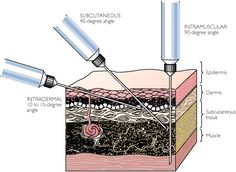 Injections: intramuscular, subcutaneous, and intradermal. ANIMAL SCIENCE UNIT! =)