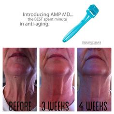rodan & Fields mini regimen with AMP MD roller Please visit my facebook Page Fifty Shadz Salon. Message me for yours today.