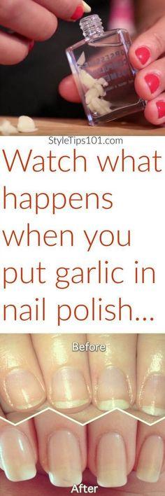 in Nail Polish: Does Garlic For Nails Work? See extreme nail growth when you add crushed garlic to clear nail polish! via extreme nail growth when you add crushed garlic to clear nail polish! Beauty Care, Diy Beauty, Beauty Hacks, Beauty Secrets, Beauty Skin, Clear Nail Polish, Clear Nails, Polish Nails, Natural Health Tips