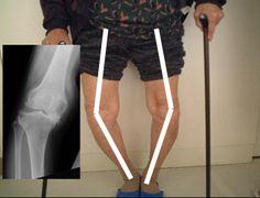 Necesita un reemplazo total de rodilla para corrección de deformidad en las rodillas e inestabilidad por Artrosis o Gonartrosis Severa. Visite a nuestros médicos especialistas en la La Unidad Especializada en Ortopedia y Traumatología S.A.S www unidadortopedia com es una clínica supraespecializada enfermedades del sistema osteoarticular y musculotendinoso. Ubicados en Bogotá D.C- Colombia. PBX: 571- 6923370, 571-6009349, Móvil +57 314-2448344, 300-2597226, 311-2048006, 317-5905407.