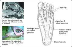PF-PlantarDesign - Sole (foot) - Wikipedia