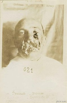 Vintage facial reconstruction