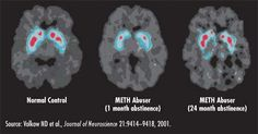 Effects of Meth on The Brain - IMR Scan